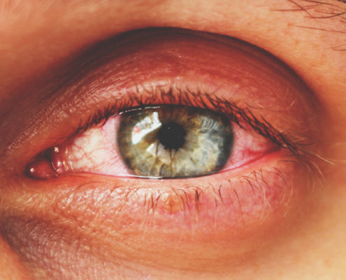 coronavirus-oftalmologia