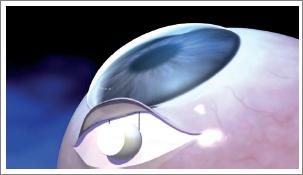 foto glaucoma